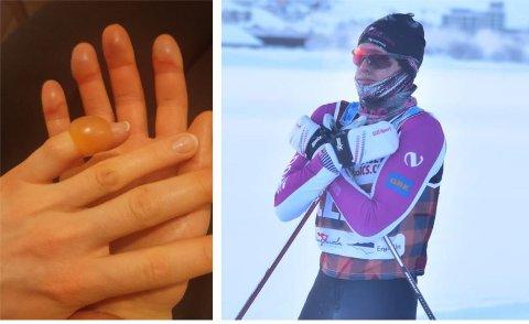 FROSTSKADER: Morten Eide Pedersen (t.h.) kom i mål kald, men uten frostskader. Verre var det for lagkompis Linn Sömskar som fikk kraftige forfrysninger og blemmer på fingrene, som vi ser til venstre i bildet.