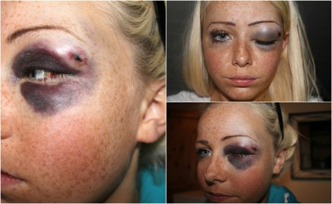 Slik våknet Therese Charlotte Nilsen opp etter en bursdagsfest i 2011. Nå avslører hun flere hemmeligheter på bloggen sin.