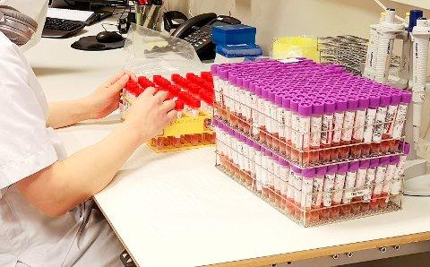 Arbeidspresset har vært stort på labben ved sykehuset i Lillehammer, og mange har vært borte fra arbeid på grunn av bivirkninger etter vaksinering.