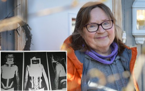 Barndom med gips og korsett: Marit Østbye fra Kongsberg fikk diagnosen skoliose som fireåring. Det ble starten på mange år med korsett og behandlinger for den skeive ryggen.