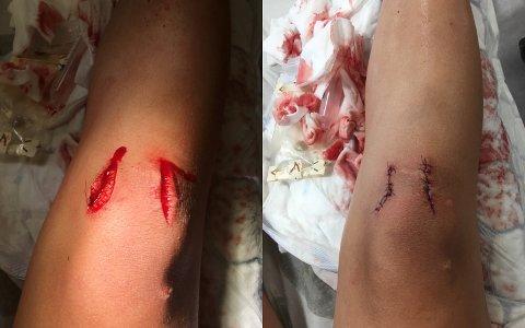 DYPE KUTT: Noah (11) fikk to svært dype kutt på kneet da han ramlet i gresset ved Lyseren.