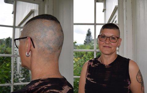 SORG: Monica Gjefsen forteller at hårtapet har vært en stor sorg.