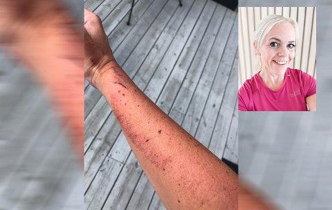 Annette Myhre slapp fra uhellet med skrekken. Slik ser armen hennes ut etter det kraftige sammenstøtet. Myhre innfelt i montasjen.
