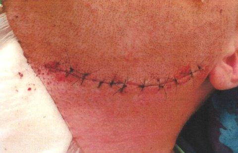 SKADE: 26-åringen ble påført et 10-12 centimeter langt kutt i halsen i Hamna for to år siden. Denne uken falt dommen mot en 29-årig mann.