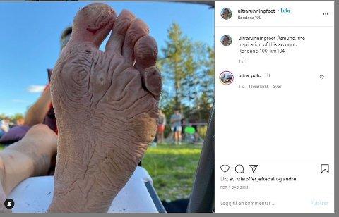 HARD MEDFART: Føttene til Aasmund Kjøllmoen Steien var ikke et pent syn da han måtte kaste inn håndkleet i Rondane 100 i fjor.
