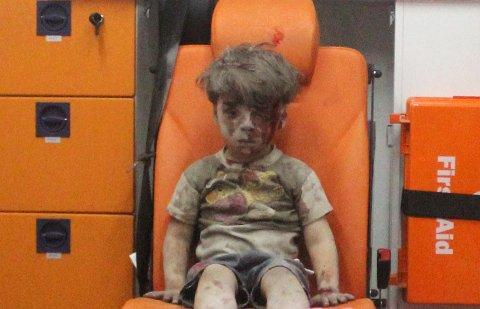 Medfølelse: Omran Daqneesh, fem år gammel og offer for borgerkrigen i Syria, ble reddet ut av ruinene etter et luftangrep mot hjembyen Aleppo. For seks år gamle Alex i USA var det naturlig å be presidenten om hjelp til å invitere Omran hjem til seg.