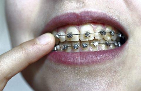 – Arbeiderpartiet vil utvide den offentlige tannhelsen, ved å begynne med dem som har dårlig råd eller sykdom, og så gradvis gå over til en fullverdig offentlig tannhelse, skriver Tellef Inge Mørland. (Foto: NTB Scanpix)