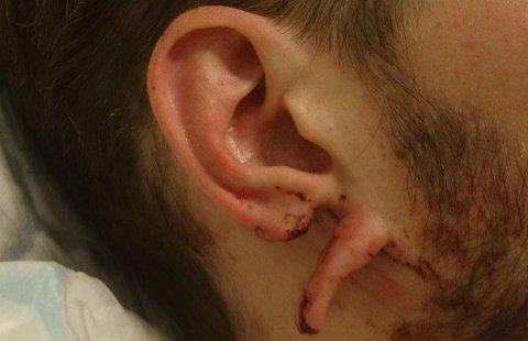 REVNET: Slik så øret til mannen ut etter bakholdsangrepet. Øret på andre siden ble skadet på samme måte.