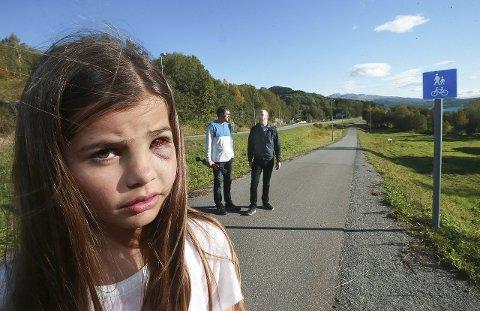 Tre brudd: Jensine Vangberg Jensen (12) fikk tre brudd i ansiktet på rulleskitrening. Bak står pappa Kjetil Jensen (til venstre) og leder i langrennsgruppa til Innstranden, Rune Holm. Foto: Tom Melby