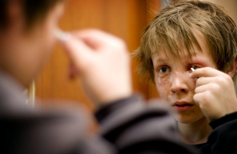 ALVORLIGE SKADER: Det etsende stoffet i Plumbo kan i verste fall føre til blindhet. Lars slapp med skrekken.