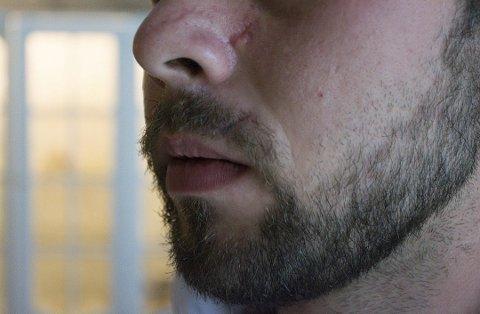 Etter angrepet, fikk mannen godt synlige arr i ansiktet. Han har også vært tungt medisinert og slitt med posttraumatisk stresslidelse (PTSD).