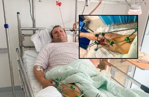 BRUTALT: Stian Eilefsen fikk et brutalt møte hesten hjemme på gården i Skiptvet og endte på sykehuset med komplisert brudd.