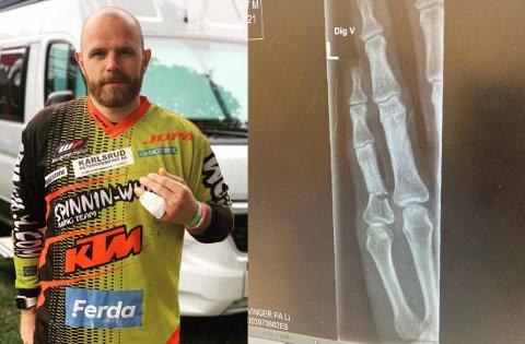 UHELDIG: Under finalehelgen i EM skjedde det som ikke skulle skje for endurokjører André Wold Larsen.