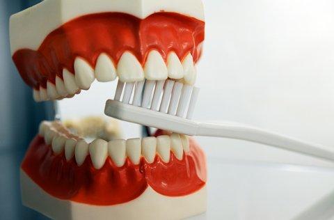 Det blir ikke hull i en tann som er ren.