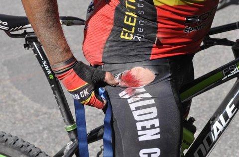 BLODIG SKINKE: Andreas Bye kunne vise fram en blodig skinke.