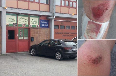 SLAGSMÅL: Inne i denne restauranten startet krangelen som utartet. 28-åringen som ble utsatt for vold fikk flere sår, en brukket nese og slo av en bit av en tann.