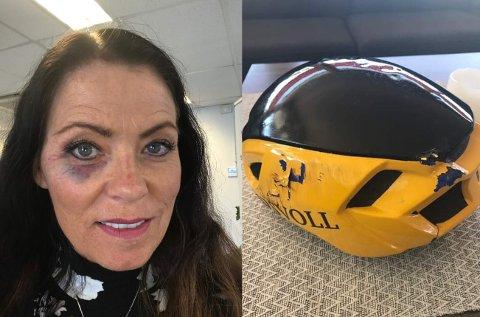 SLAPP UNNA: Irene Moe Lindstad slapp fra sykkelulykken med en blåveis og en knust hjelm.