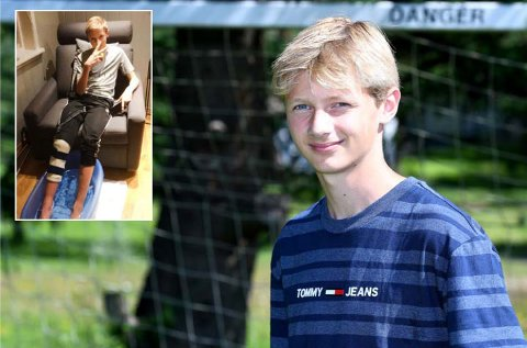 KLAR: Brage Evensen er klar for talentleiren på Kjølnes. 15-åringen har jobbet seg tilbake etter at han brakk beinet i fjor vinter.