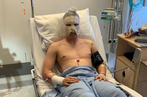 BANDASJERT: Sander Kulstad Haugen måtte tilbringe en uke på sykehuset etter eksplosjonen. Slik så han ut etter operasjon og sårbehandling like etter ulykken.