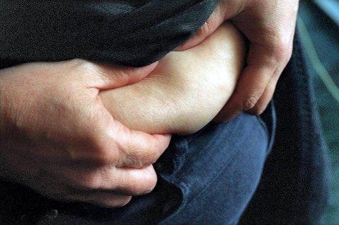 Hvor blir det av fettet når vi slanker oss? Svaret på det vil trolig overraske mange.