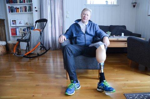 SOM FØR: – Jeg er som før sjøl om foten er borte, sier Arne Johan Sigstad.