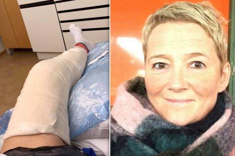 AUDA: Med et gipset bein må Turid Emaus Karlstrøm ta det med ro en stund framover.