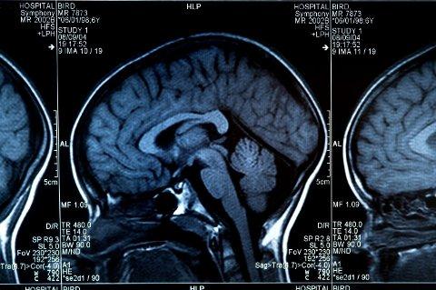ALZHEIMER: Mellom 80.000 og 100.000 lever med demens i Norge, og Alzheimers sykdom er den vanligste formen for demens. Sykdommen utvikler seg over mange år, og fører til tap av hjerneceller.