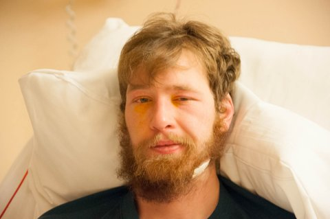 PLASTRET: Kjell-Harald Myrseth mistet deler av skjegget og huden da isen ble revet av ansiktet hans.