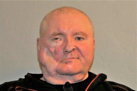 VANSIRET: Dobbeltedrapsmannen Bengt Ronald Hansen fra Kirkenes er kraftig vansiret i ansiktet, etter at han forsøkte å ta sitt eget liv i etterkant av drapet på sin kone og stesønn. Han har kun to tenner igjen, og høyre kjeveben er borte. Han er også blind på det høyre øyet.