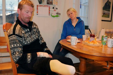PROTESER: Johnny Hansen har verken noe imot å snakke om problemene som har rammet han eller vise fram proteser og sine nye hender. (Foto: Øyvind A. Olsen)