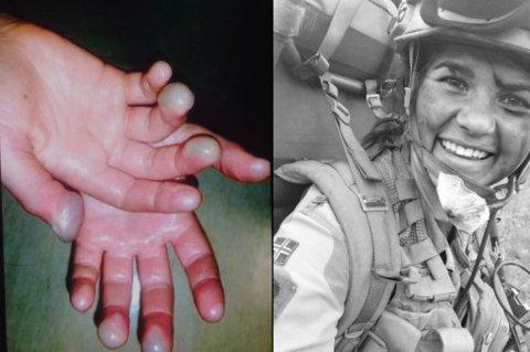 FROSTSKADER: Slik så hendene til Henriette Ofstad (20) ut etter at hun hadde vært på vinterøvelse i Indre Troms i fjor vinter.