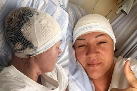 Disse bildene la tidligere toppdommer Hege Lanes Steinlund fra Furuflaten ut etter at hun hadde fått åpnet opp hodet for å fjerne en blødende tumor. Tommelen opp på bildet til høyre viser at hun er ved godt mot.
