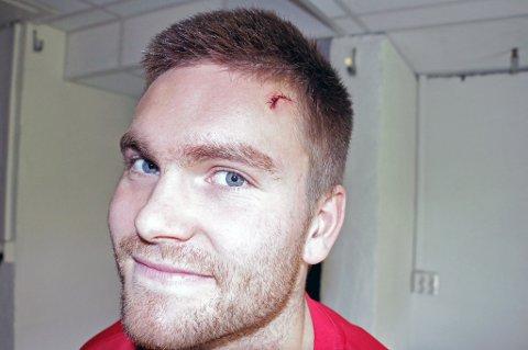 MERKET: Gudmund T. Kongshavn måtte sy syv sting i panna etter et møte med lagkamerat Mikael Norø Ingebrigtsens kne på onsdagens trening. Men han melder seg klar til Stabæk-møtet søndag.