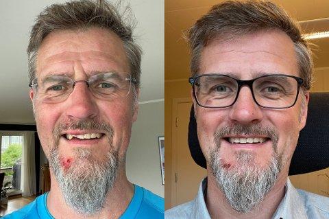FØR OG ETTER: Erik Wikran fikk et ublidt møte med asfalten og knakk to tenner i overkjeven. Nå er han midlertidig lappet sammen.