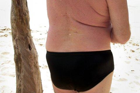 Hvit mann på sandstrand. Turisme. Fedme.  Overvekt. Sydenferie. Syden. Svart badebukse. Solbrent.  FOTO: SCANPIX