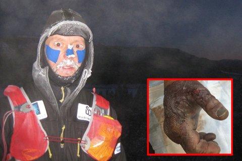 BRUTALT: Frode Lein (49) har nylig fullført verdens kaldeste ultraløp. På seks dager tilbakela han nærmere 300 kilometer. Dette er langt fra den verste skaden Lein var vitne til. FOTO: PRIVAT