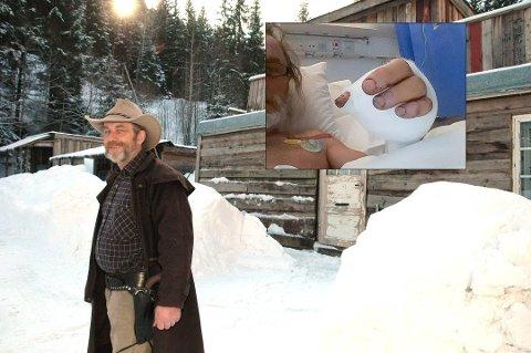 BEHOLDT ROEN: Erik Thorbjørnsen klarte å holde hodet kaldt da geværet hans eksplodere og rev av en finger.