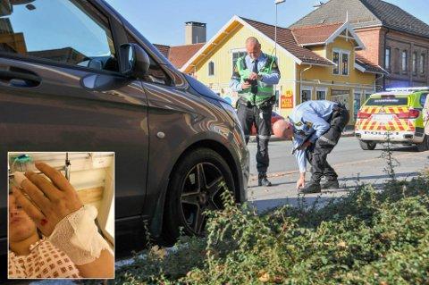 SKREKKOPPLEVELSE: Kvinnen som ble dratt under en bil i Skien i oktober ble påført en rekke smertefulle skader. Nå er sjåføren dømt.