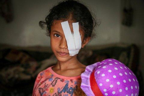 Bildetekst: Åtte år gamle Razan ble skadet etter å ha blitt truffet av splinter under et flyangrep i Hodeida, Jemen.