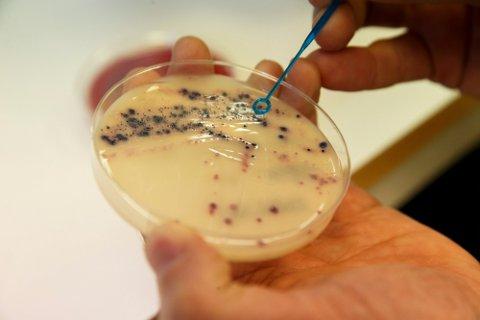 MOTSTANSDYKTIGE: Antibiotikaresistente bakterier er i ferd med å bli et kjempeproblem, det vil et norsk selskap gjøre noe med. Foto: Cornelius Poppe (NTB)