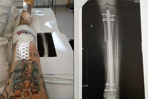PÅ SYKEHUS: Mannen måtte opereres etter voldsepisoden i Gamlebyen i sommer. Han sliter ennå med foten, forteller han til Avisa Oslo.