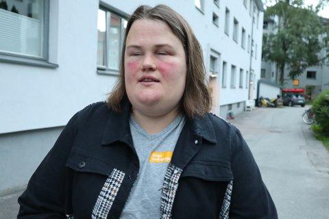 FORNØYD - MEN IKKE HELT: Fra å være redd hver gang hun skulle ut døra, har det nå blitt mye bedre. Men likevel er ikke Isabel Engan fornøyd med bildet over dagens elsparkesykler i Oslo.