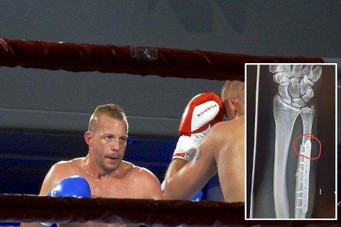 Roy Wischmann (til venstre) slo Thomas Bärnholdt i Bergen Fight Night. Tidligere i år vant han NM med brukket arm. Så brakk han den igjen mot Bärnholdt, men vant likevel! Bruddet innfelt.