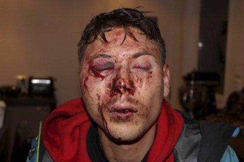 Petter Slengesol (33) ble påført omfattende skader under ranet og var ute av arbeidslivet i nesten fire år etterpå.