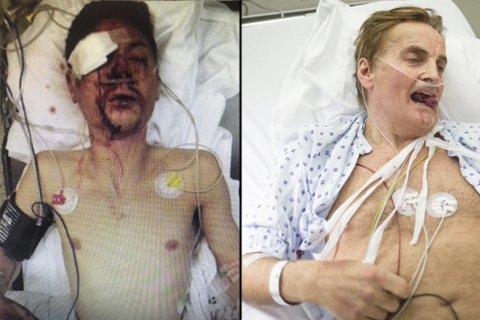 De to polske mennene er tiltalt for grove overfall og ran av Petter Slengesol og Reidar Osen med noen måneders mellomrom i 2015. FOTO: Privat/BA