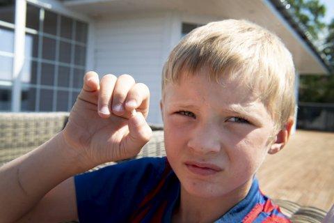 Herman (8) kjente noe bevege seg inne i øret.