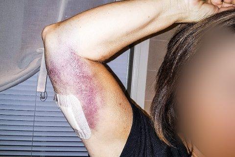 REGNBUE: Bittet på høyre underarm er det mest alvorlige og dype. Kvinnen forteller at smertene har vært og er veldig sterke. – Armen har gått fra rød til blå, nå nærmer den seg gul, forteller hun.