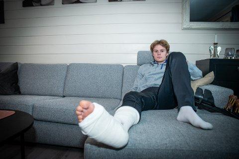 SMERTEFULLT: Kevin Eidevik (17) bekrefter at bruddet som han dagen etter legevaktbesøket fikk konstatert ved hjelp av røntgen kjentes godt.