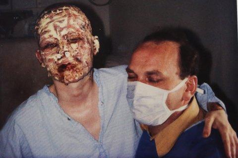 11 DAGAR ETTER ULUKKA: – Tre dagar etter brannskaden skrelte dei det øydelagde vevet av ansiktet mitt. Dette er det som var att.