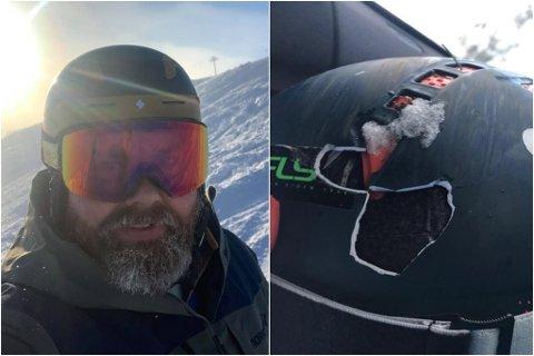 PROVOSERT: Jo Marius Bøyabreen (35) blir provosert når han ser skikøyrarar utan hjelm. Han veit kor mykje hjelmen kan hjelpe om ein er uheldig.